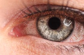 Home-Remedies-To-Get-Relief-From-Pink-Eye
